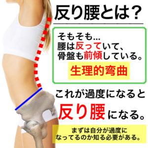 反り腰を解消する筋トレ